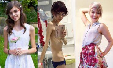 Superó la anorexia y ahora difunde información sobre esa enfermedad