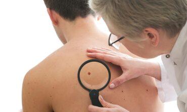 Cáncer de piel: recomendaciones claves para prevenirlo