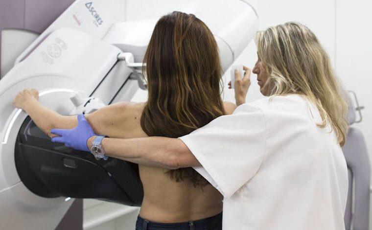 Con 25 años creó un algoritmo para detectar los tumores de mama